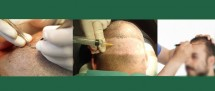 PROCEDURE  AND LOCAL ANESTHESIA